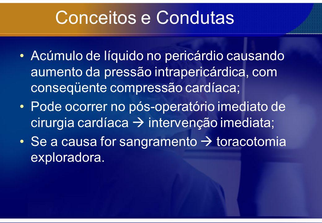 Conceitos e Condutas Acúmulo de líquido no pericárdio causando aumento da pressão intrapericárdica, com conseqüente compressão cardíaca;