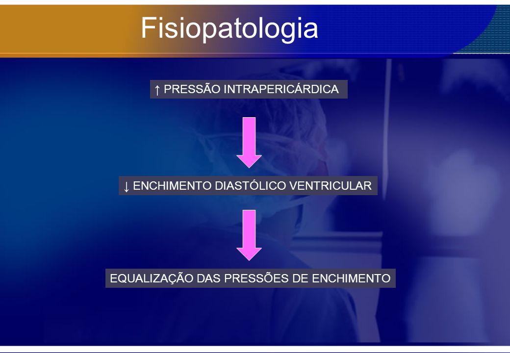 Fisiopatologia ↑ PRESSÃO INTRAPERICÁRDICA