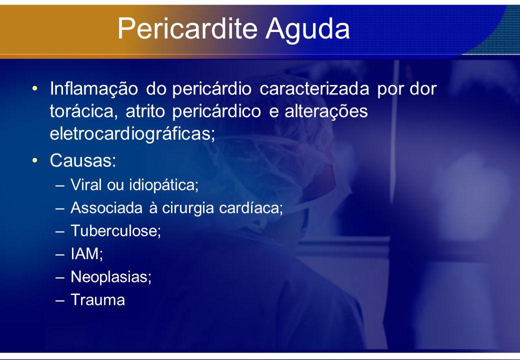 Pericardite Aguda Inflamação do pericárdio caracterizada por dor torácica, atrito pericárdico e alterações eletrocardiográficas;
