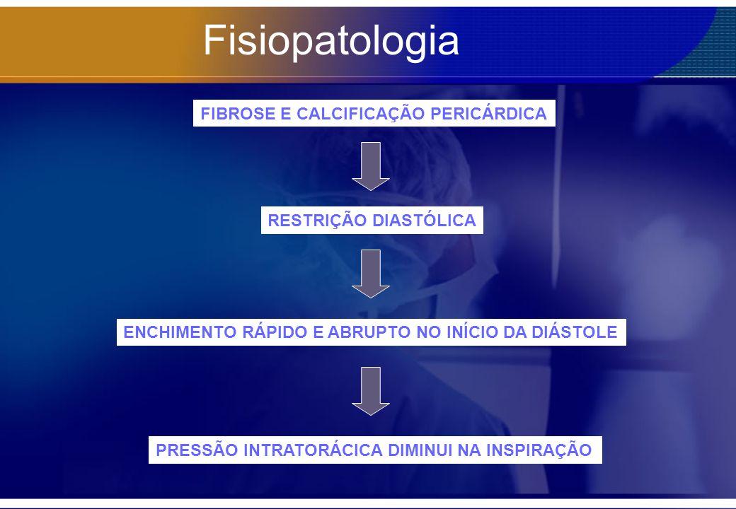 Fisiopatologia FIBROSE E CALCIFICAÇÃO PERICÁRDICA RESTRIÇÃO DIASTÓLICA