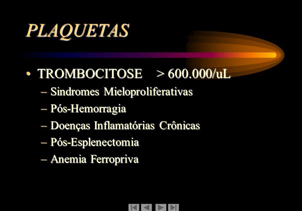PLAQUETAS TROMBOCITOSE > 600.000/uL Sindromes Mieloproliferativas