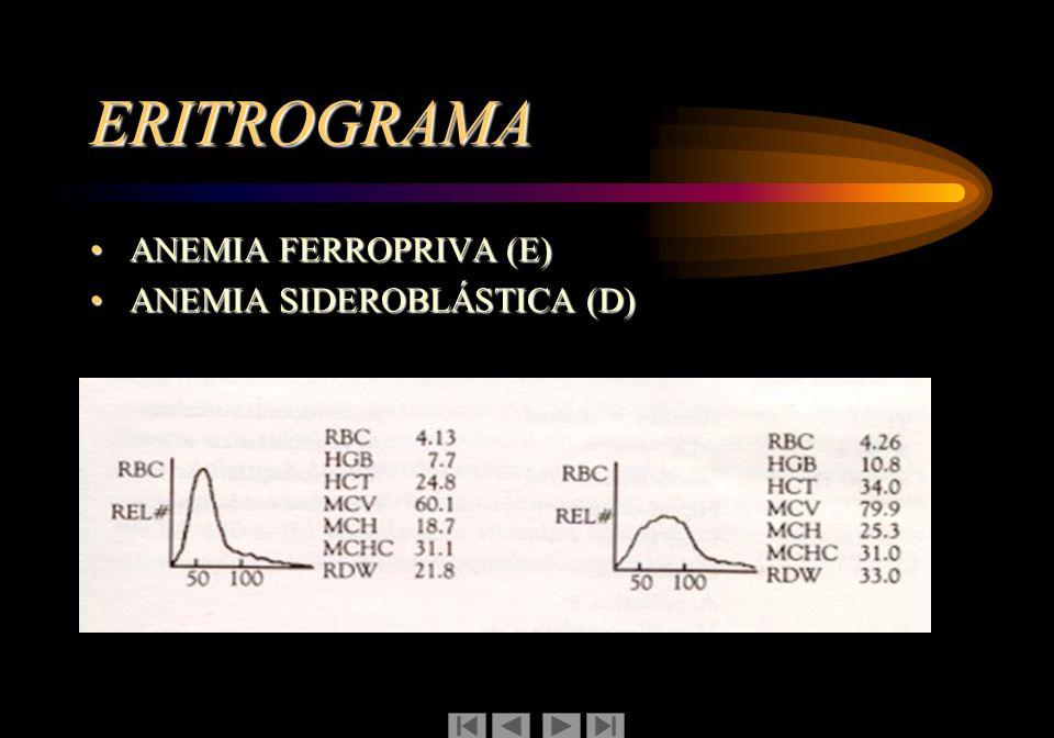 ERITROGRAMA ANEMIA FERROPRIVA (E) ANEMIA SIDEROBLÁSTICA (D)