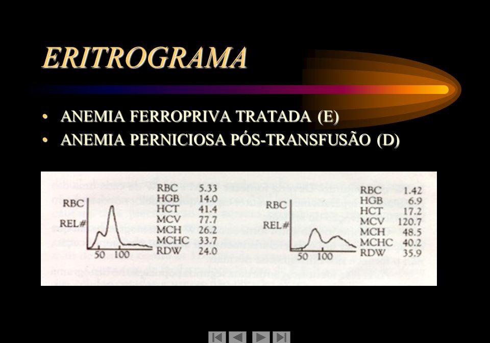 ERITROGRAMA ANEMIA FERROPRIVA TRATADA (E)