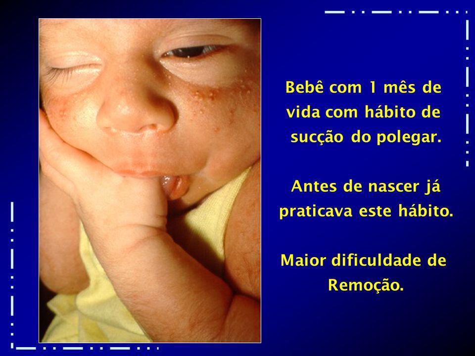 Bebê com 1 mês de vida com hábito de. sucção do polegar. Antes de nascer já. praticava este hábito.