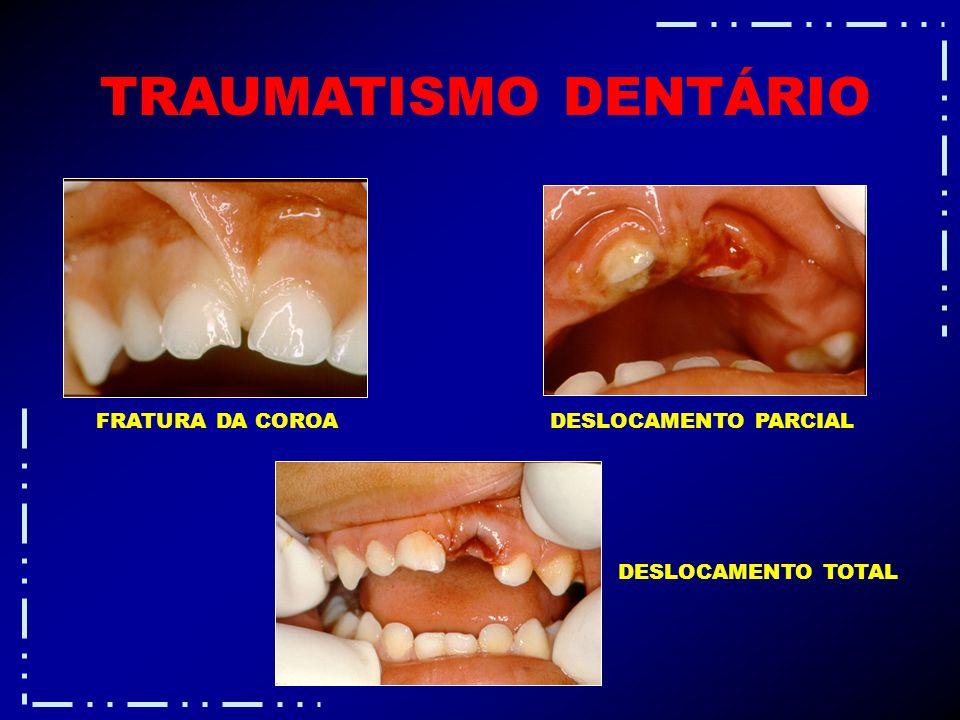 TRAUMATISMO DENTÁRIO FRATURA DA COROA DESLOCAMENTO PARCIAL