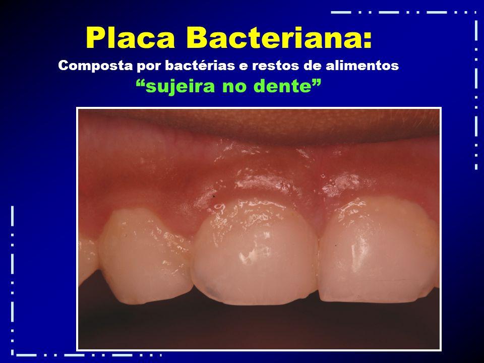 Composta por bactérias e restos de alimentos