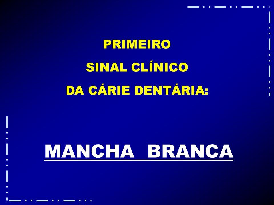 PRIMEIRO SINAL CLÍNICO DA CÁRIE DENTÁRIA: MANCHA BRANCA