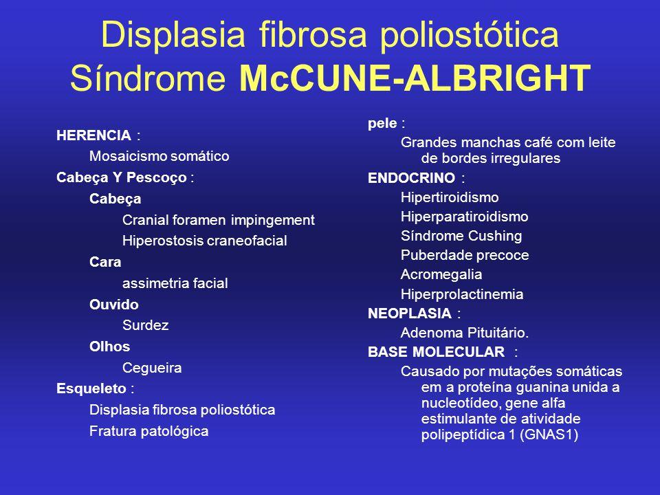 Displasia fibrosa poliostótica Síndrome McCUNE-ALBRIGHT