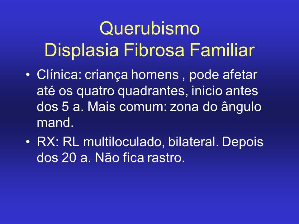 Querubismo Displasia Fibrosa Familiar