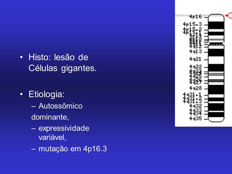 Histo: lesão de Células gigantes.