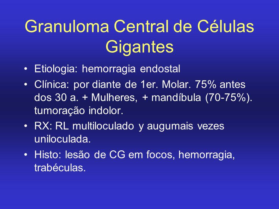Granuloma Central de Células Gigantes