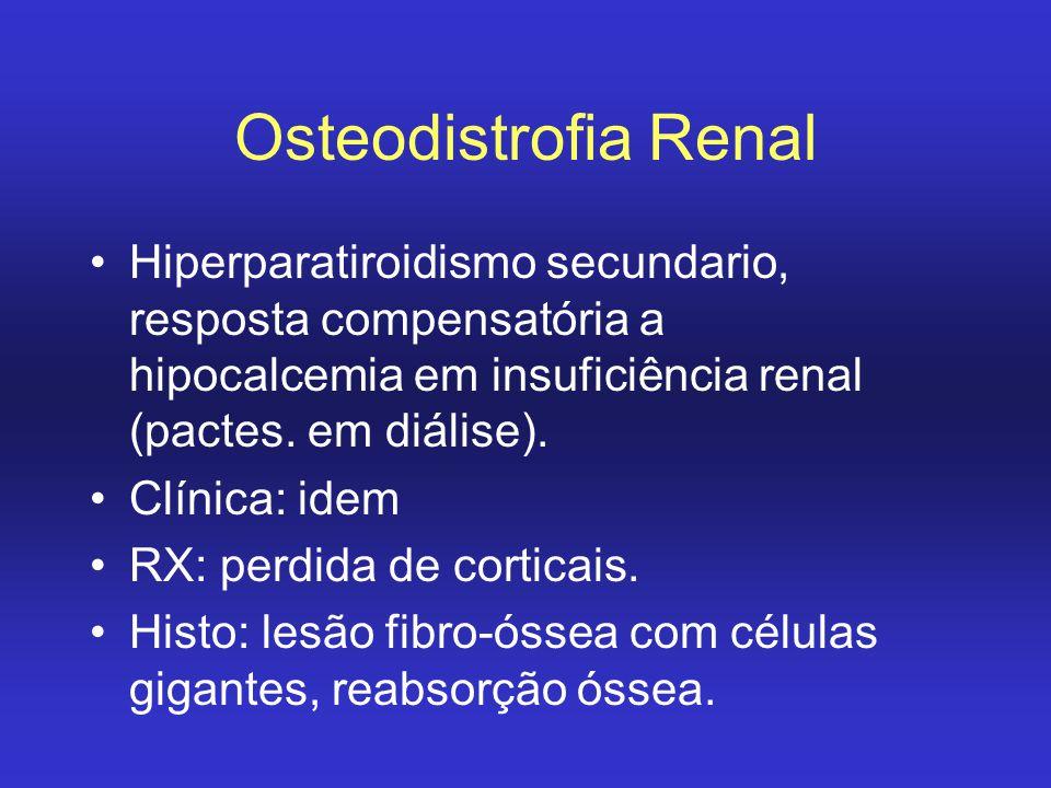 Osteodistrofia Renal Hiperparatiroidismo secundario, resposta compensatória a hipocalcemia em insuficiência renal (pactes. em diálise).