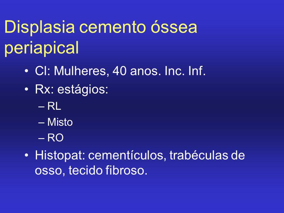 Displasia cemento óssea periapical