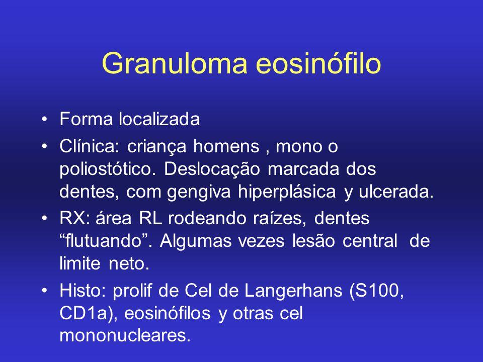 Granuloma eosinófilo Forma localizada
