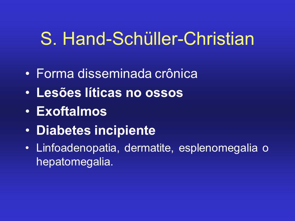 S. Hand-Schüller-Christian