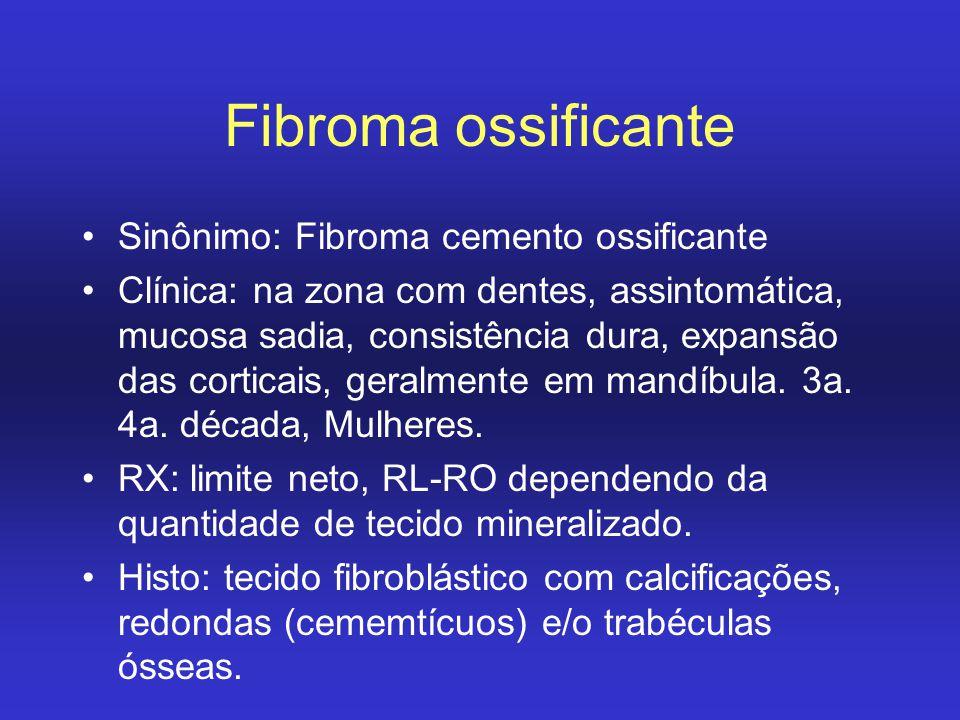 Fibroma ossificante Sinônimo: Fibroma cemento ossificante