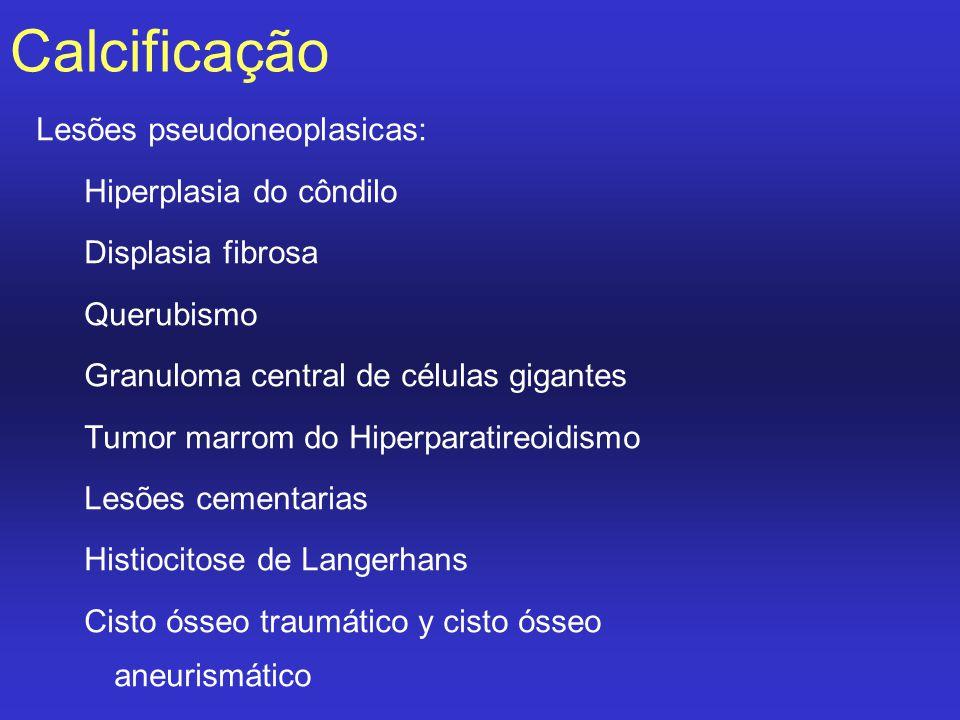 Calcificação Lesões pseudoneoplasicas: Hiperplasia do côndilo