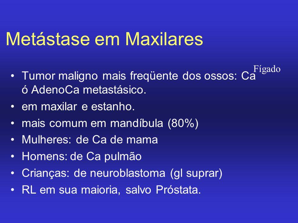 Metástase em Maxilares