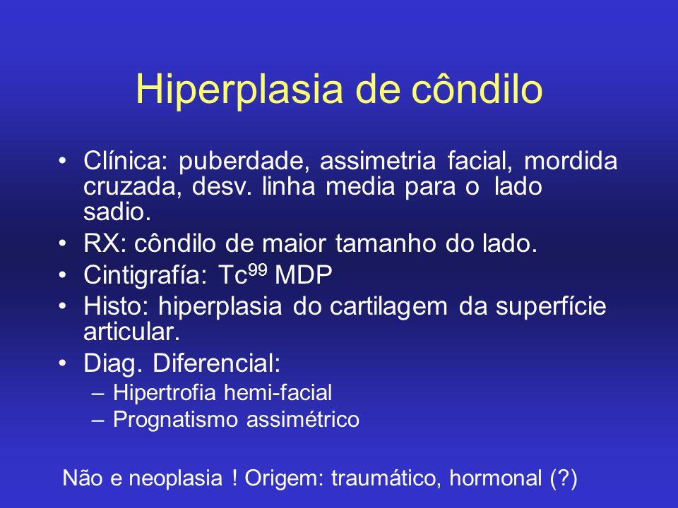 Hiperplasia de côndilo
