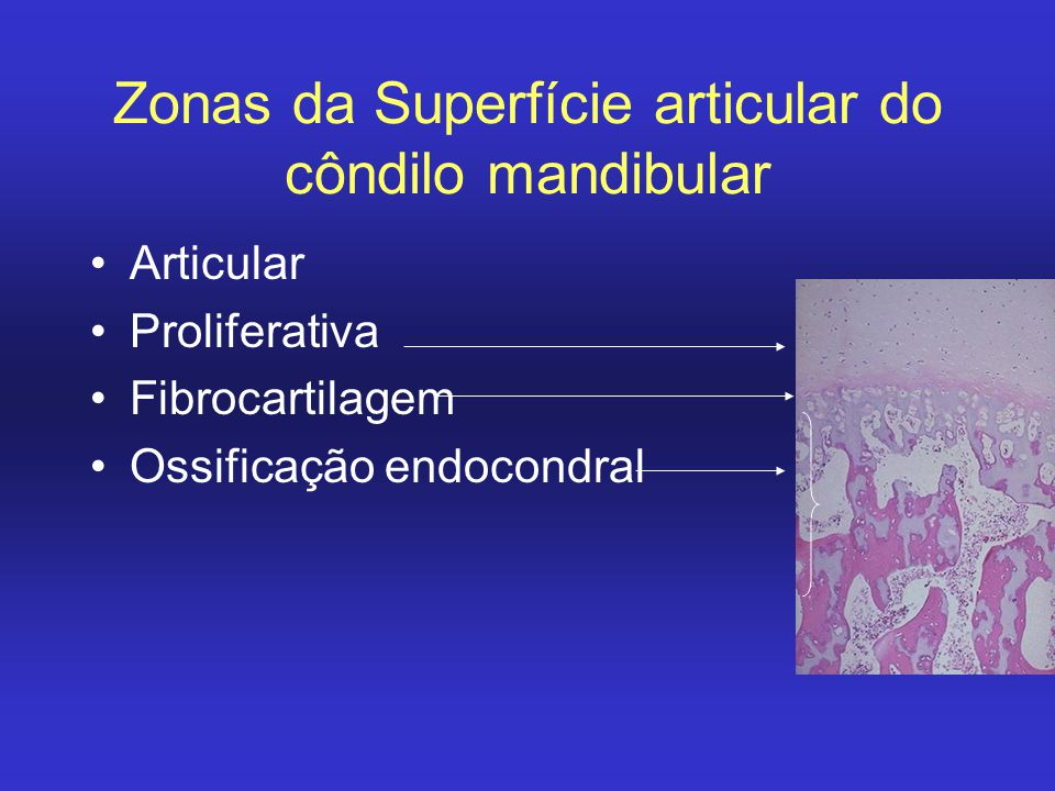 Zonas da Superfície articular do côndilo mandibular