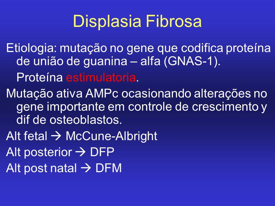 Displasia Fibrosa Etiologia: mutação no gene que codifica proteína de união de guanina – alfa (GNAS-1).