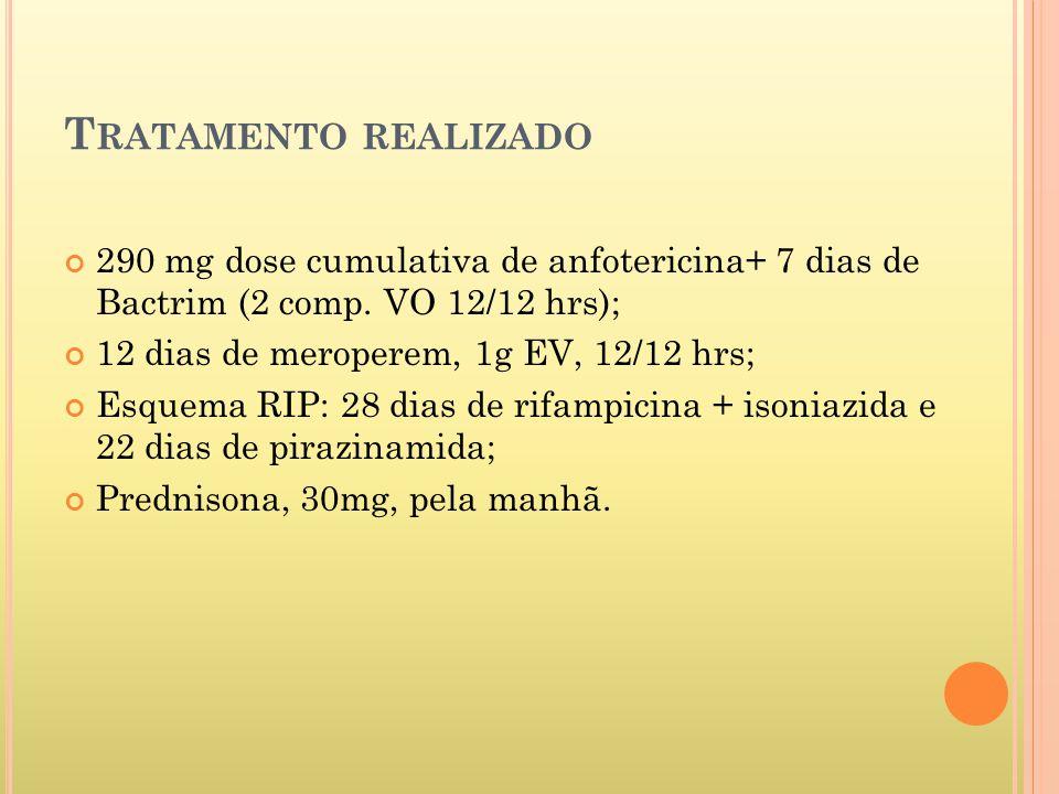 Tratamento realizado 290 mg dose cumulativa de anfotericina+ 7 dias de Bactrim (2 comp. VO 12/12 hrs);