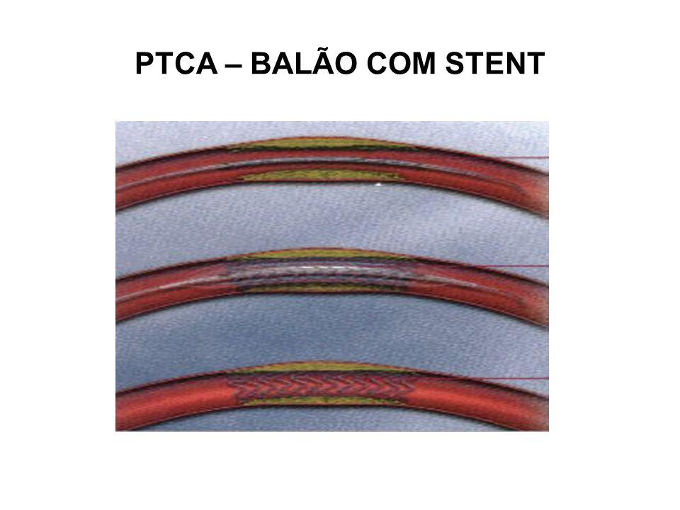 PTCA – BALÃO COM STENT