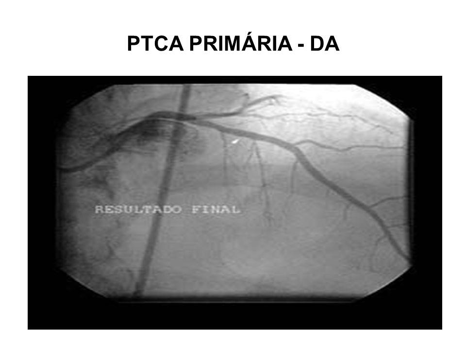 PTCA PRIMÁRIA - DA