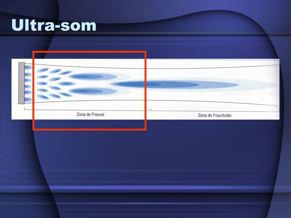 Ultra-som