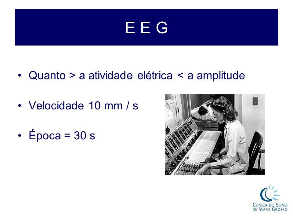 E E G Quanto > a atividade elétrica < a amplitude