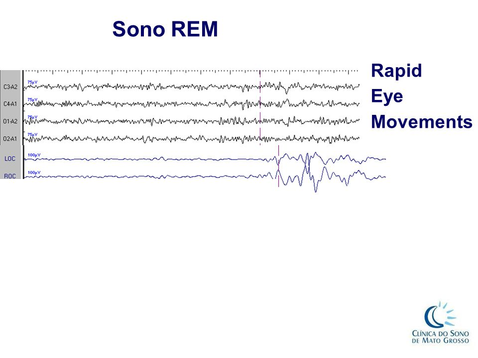 Sono REM Rapid Eye Movements REM com ondas dente de serra