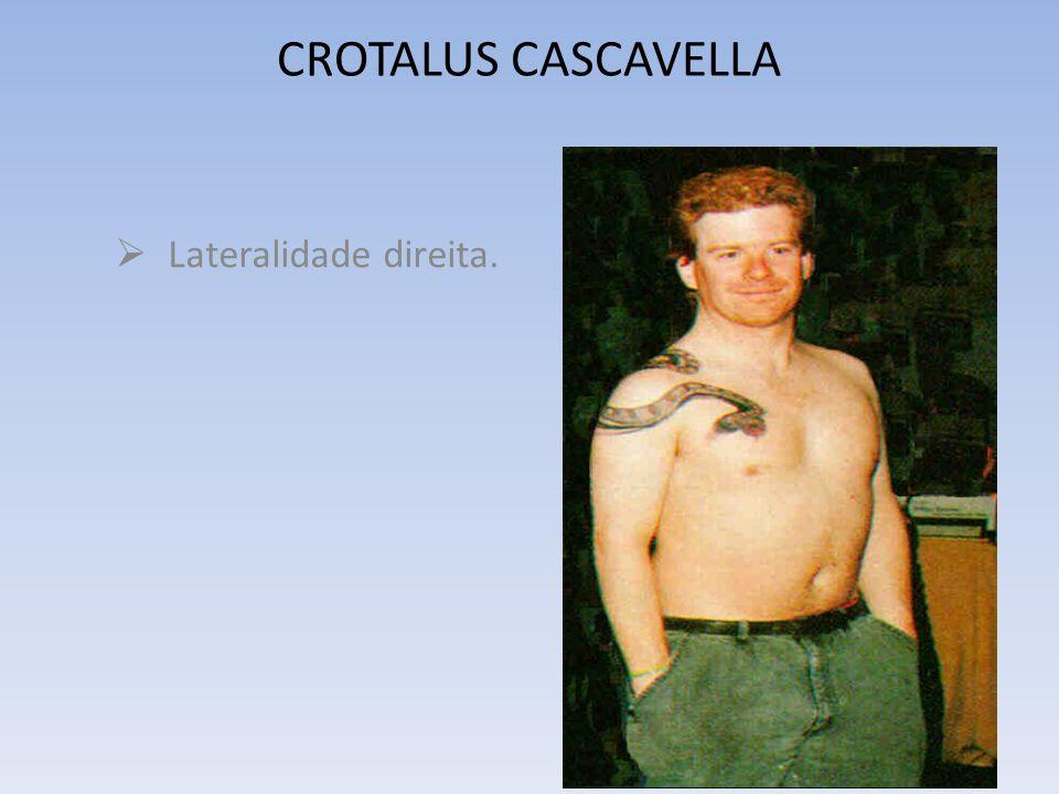 CROTALUS CASCAVELLA Lateralidade direita.