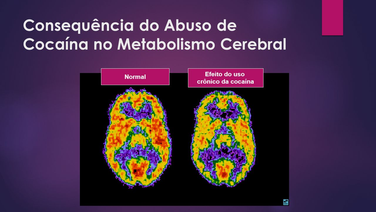 Consequência do Abuso de Cocaína no Metabolismo Cerebral