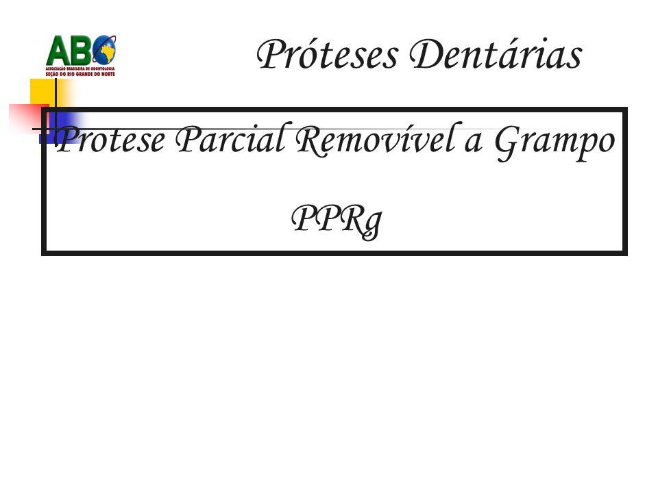 Próteses Dentárias Protese Parcial Removível a Grampo PPRg