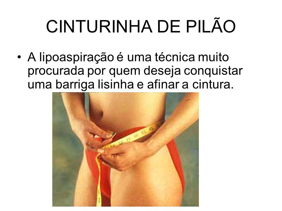 CINTURINHA DE PILÃO A lipoaspiração é uma técnica muito procurada por quem deseja conquistar uma barriga lisinha e afinar a cintura.