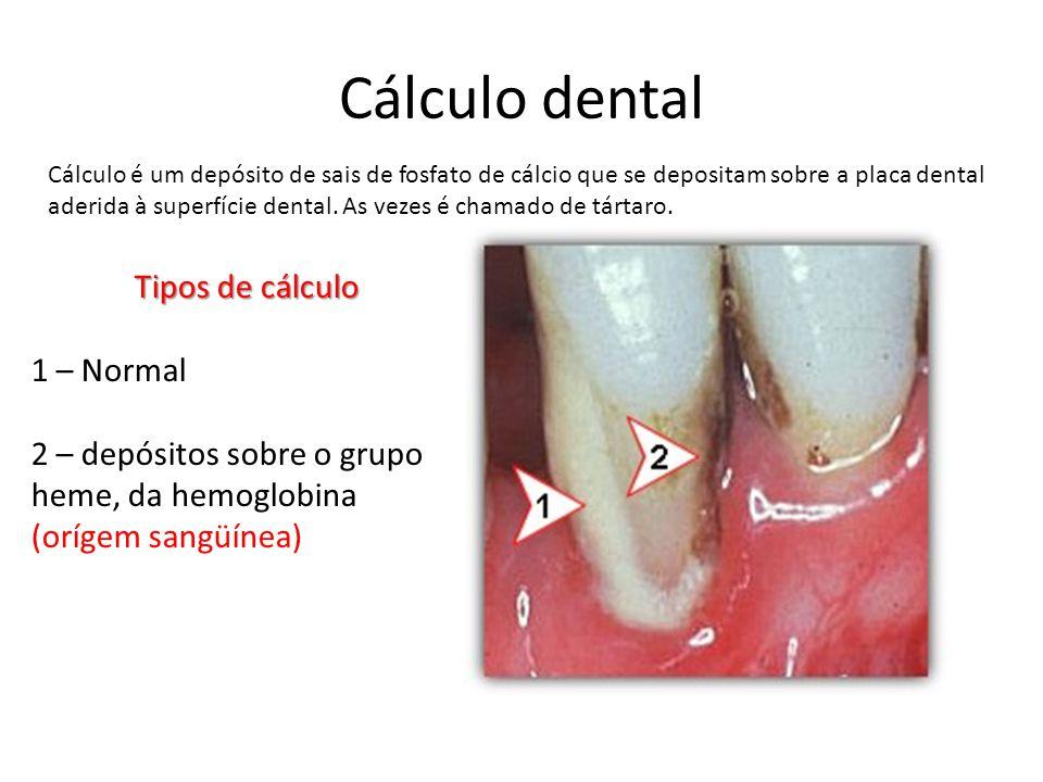 Cálculo dental Tipos de cálculo 1 – Normal