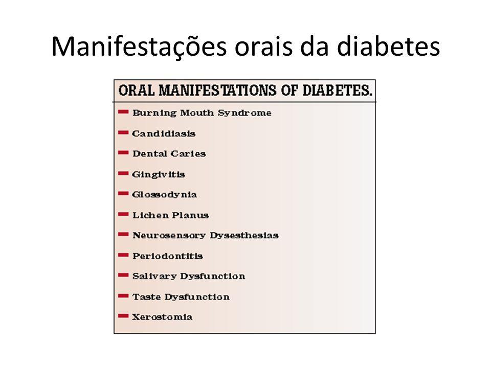 Manifestações orais da diabetes