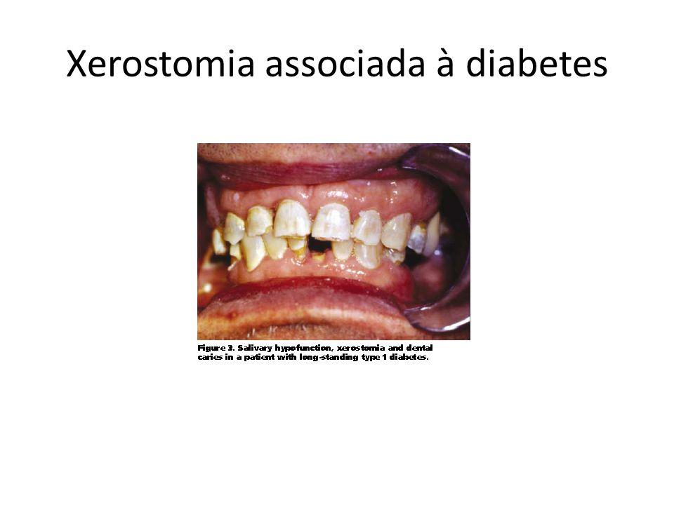 Xerostomia associada à diabetes