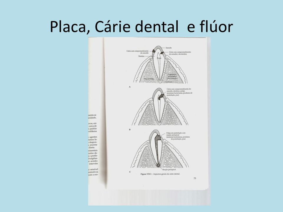 Placa, Cárie dental e flúor