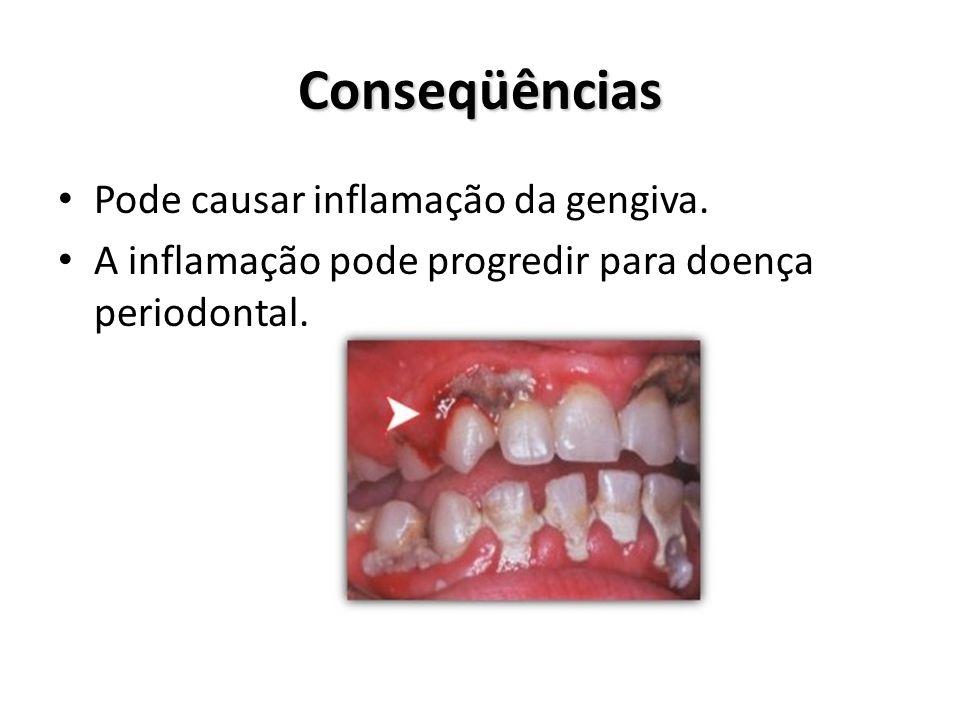 Conseqüências Pode causar inflamação da gengiva.