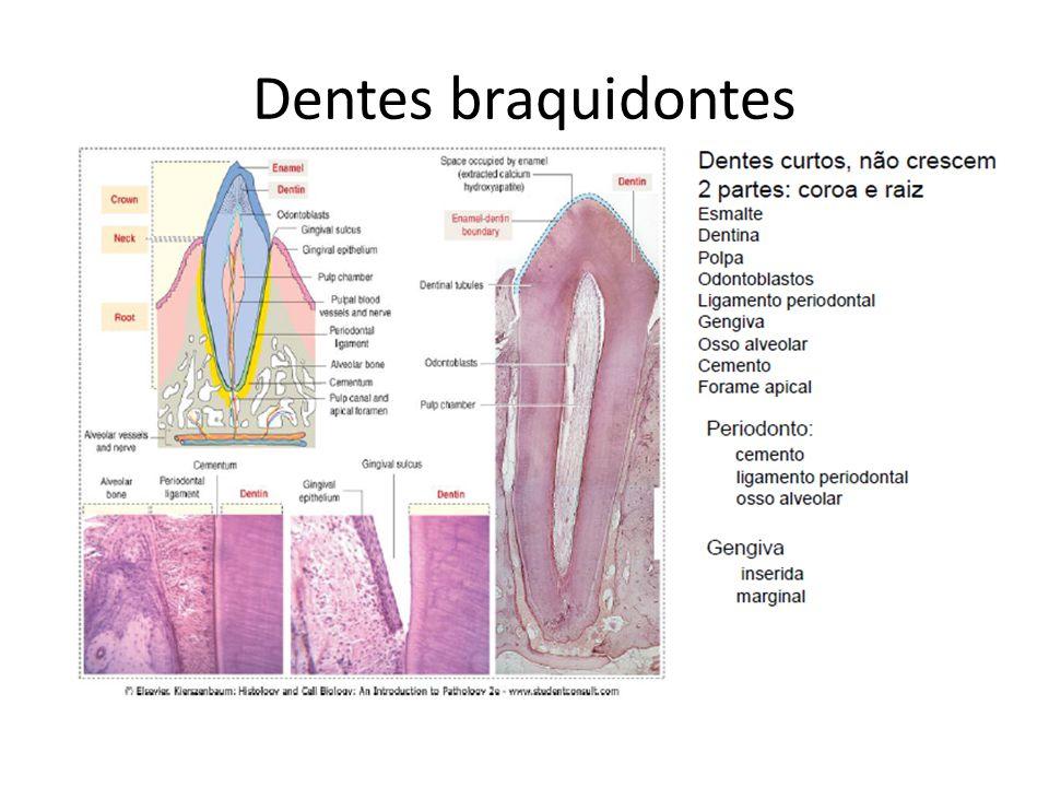 Dentes braquidontes