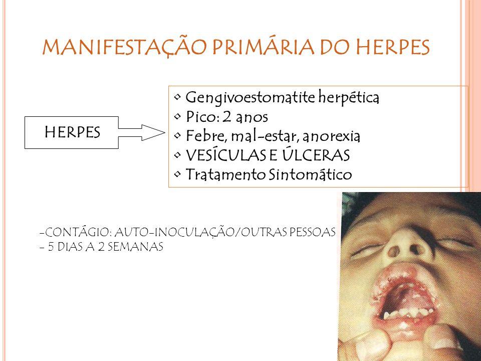 MANIFESTAÇÃO PRIMÁRIA DO HERPES