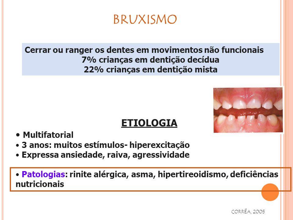 7% crianças em dentição decídua 22% crianças em dentição mista