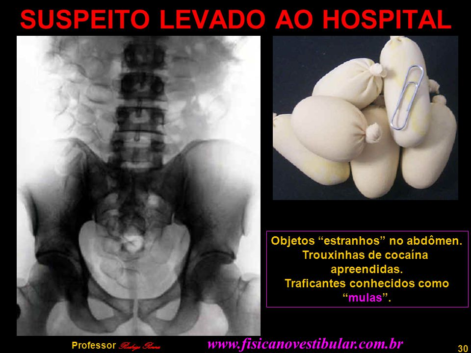 SUSPEITO LEVADO AO HOSPITAL