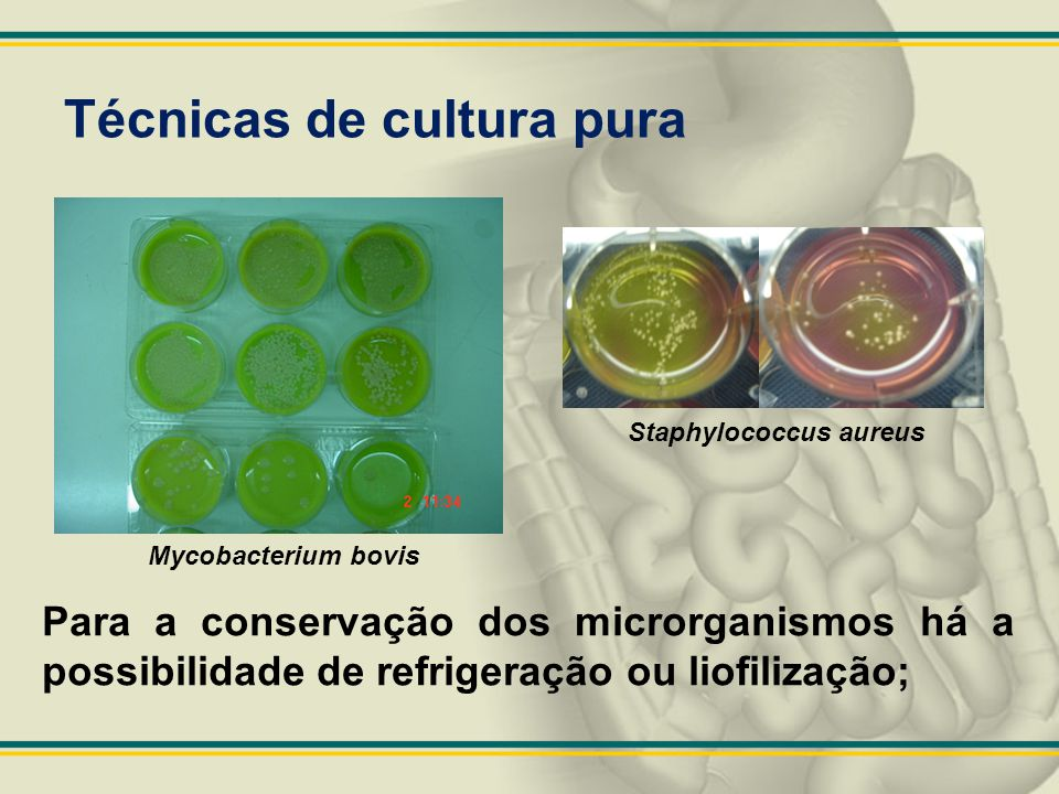Técnicas de cultura pura Staphylococcus aureus