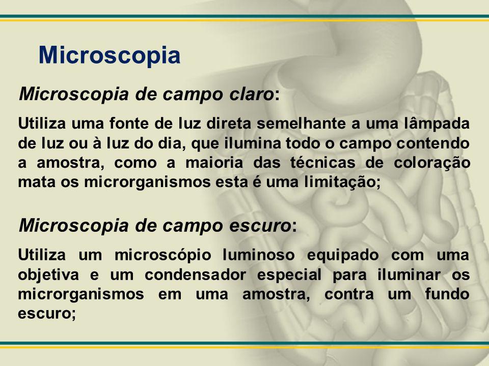 Microscopia Microscopia de campo claro: Microscopia de campo escuro: