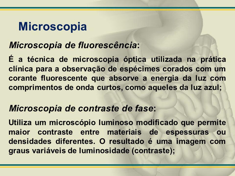 Microscopia Microscopia de fluorescência: