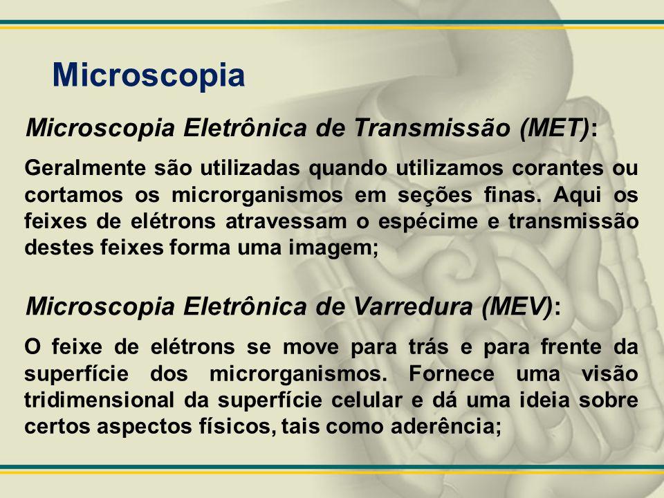 Microscopia Microscopia Eletrônica de Transmissão (MET):