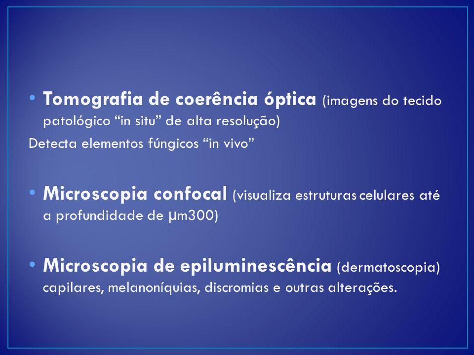Tomografia de coerência óptica (imagens do tecido patológico in situ de alta resolução)