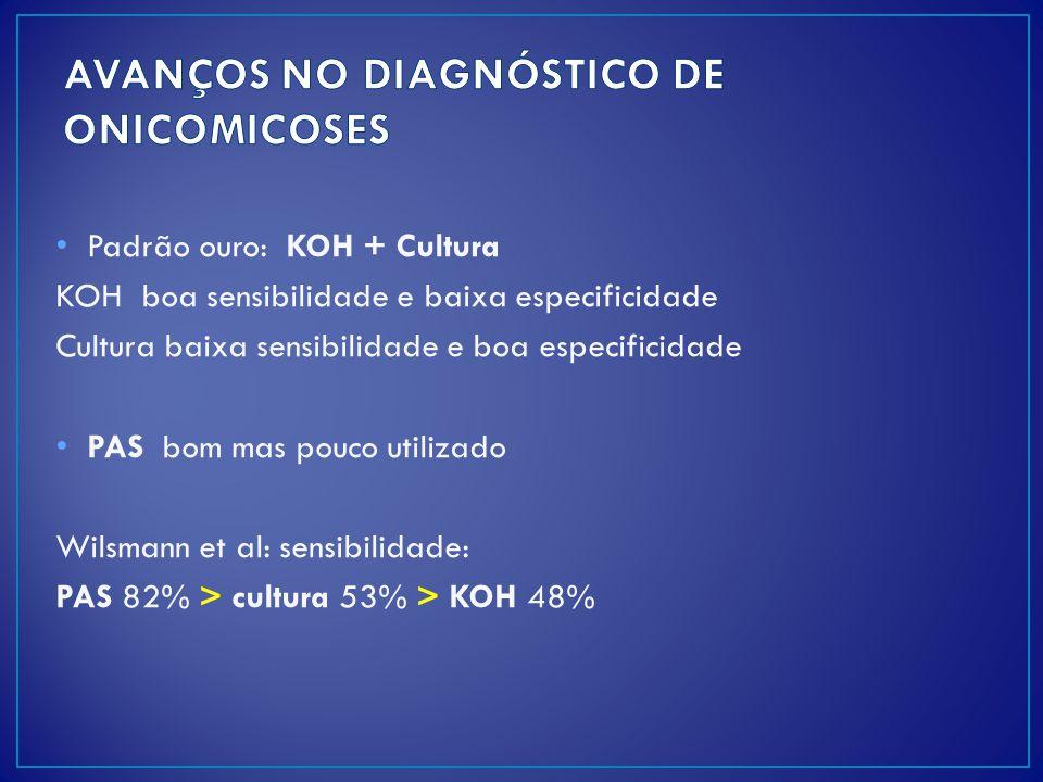 AVANÇOS NO DIAGNÓSTICO DE ONICOMICOSES